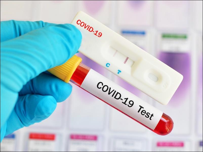 Corona Update : देश में 93 लाख पार हुए कोरोना संक्रमित, 87 लाख से अधिक हुए स्वस्थ