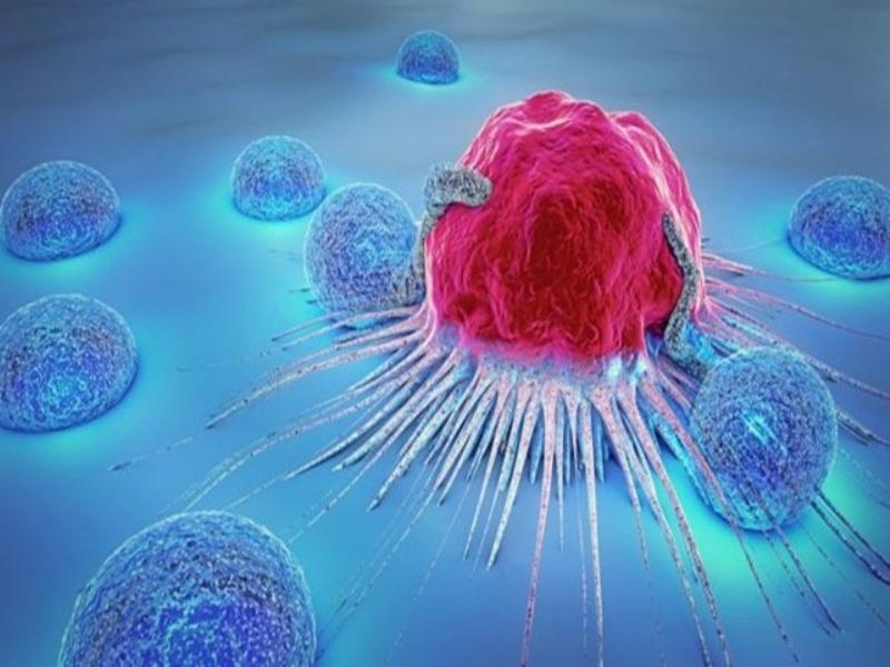 Cancer Patient Chemotherapy: स्तन कैंसर के हर मरीजों को कीमोथैरेपी कराने की जरुरत नहीं