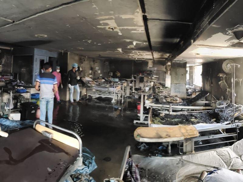 उज्जैन में अस्पताल में आग से झुलसी महिला की इलाज के दौरान मौत