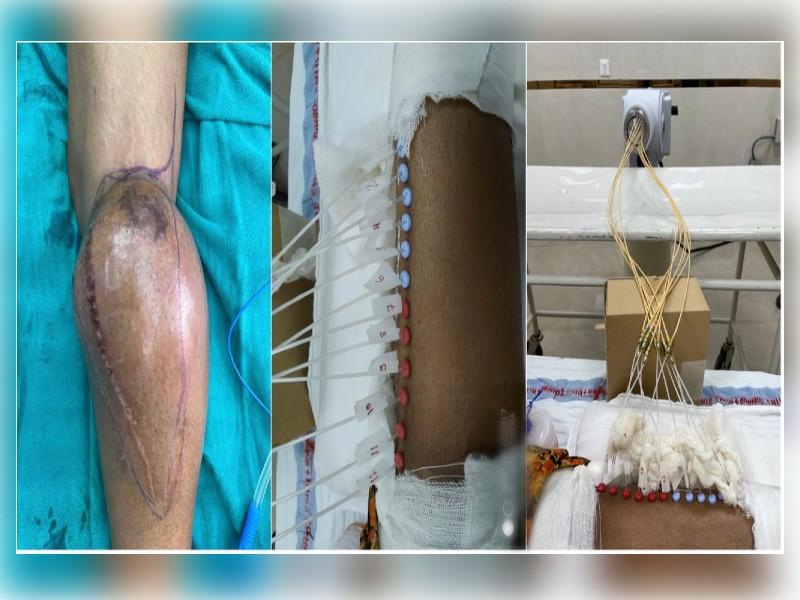 एम्स जोधपुर में पैर में कैंसर की गाँठ काब्रेकीथेरेपी कैथेटर तकनीक से हुआ ऑपरेशन,रेडियोथेरेपी देकर पैर को बचाया