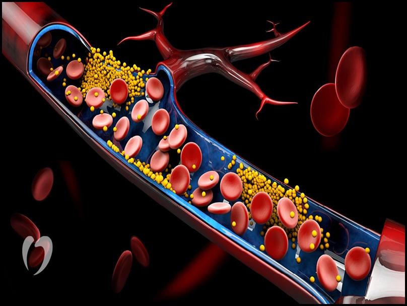 High Cholesterol: शरीर में यदि हाई कोलेस्ट्रॉल है तो पैर देने लगते हैं ये संकेत, तत्काल डॉक्टर से करें संपर्क
