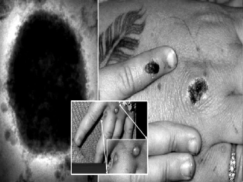 कोरोना वायरस के बाद UK में नयी मुसीबत, सामने आए Monkeypox के मामले