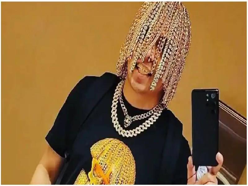 Gold Chain Implantation: मैक्सिकन रैपर ने सिर से बाल हटवाकर लगवाई सोने की चेन, कहा- करियर में मदद मिलेगी