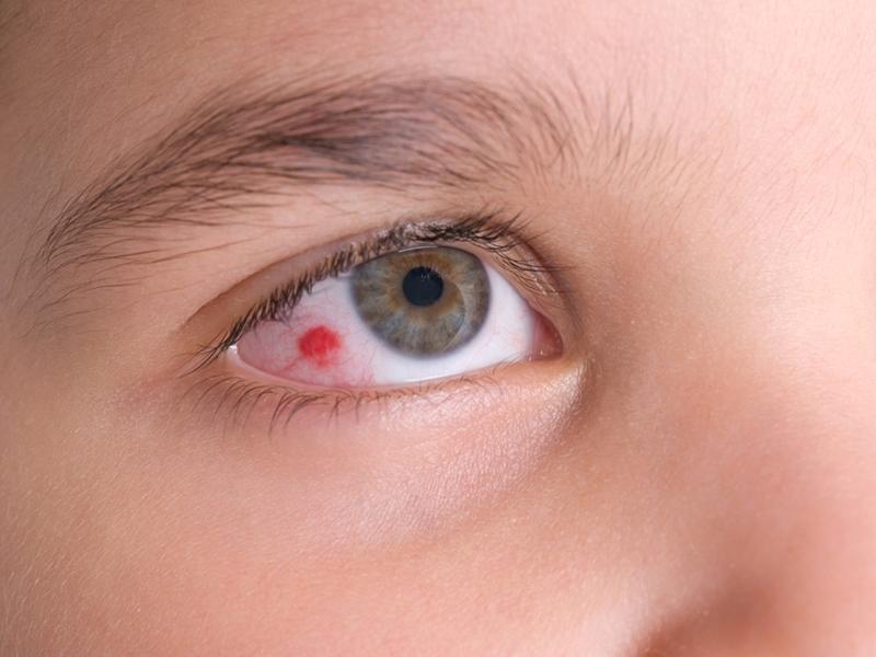 Coronavirus New Symptoms: कोरोना वायरस का एक और लक्षण, आंखों में बन रहे खून के थक्के, आप भी रहें अलर्ट