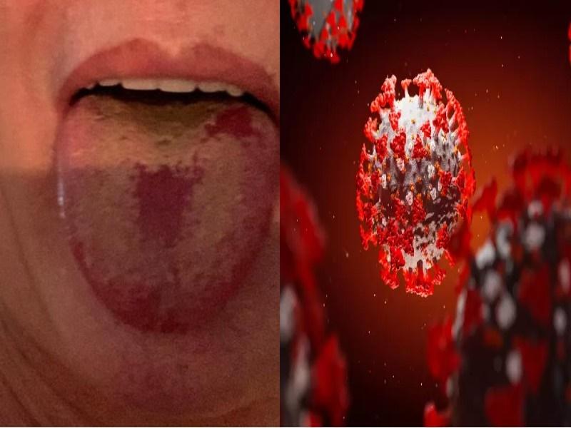 Coronavirus New Symptom: कोरोना वायरस का अब नया लक्षण, शरीर का ये अंग हो रहा प्रभावित