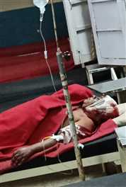 नेपा मिल कर्मचारी के घर घुसे डकैतों ने दंपती पर किया हमला