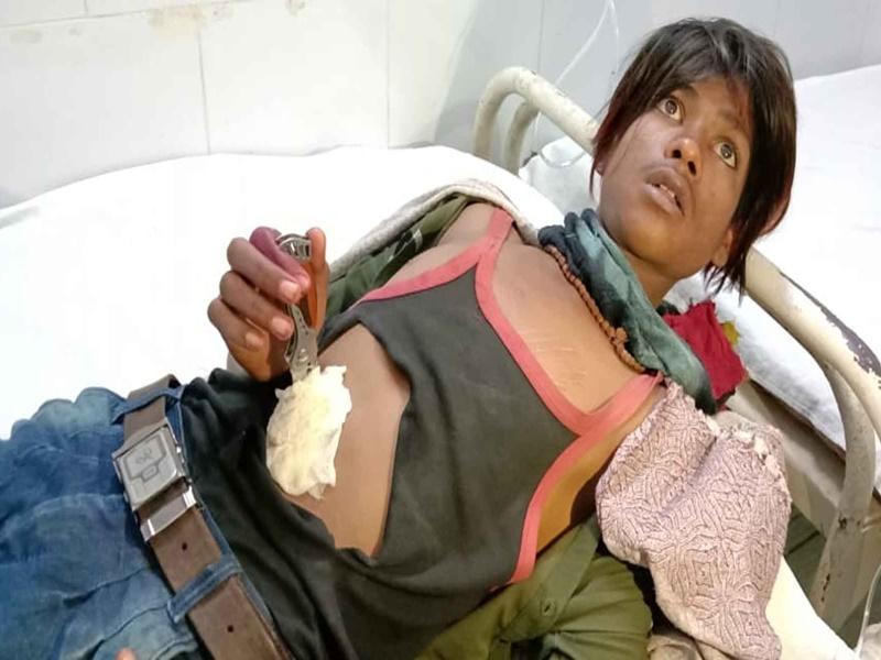 Ratlam Crime News: दोस्त ने किया हमला, पेट में फंसे चाकू सहित अस्पताल में कराया भर्ती