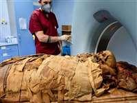 3000 साल पुरानी ममी का इटली में CT Scan, आखिर क्या जानना चाहते हैं वैज्ञानिक, देखें फोटो