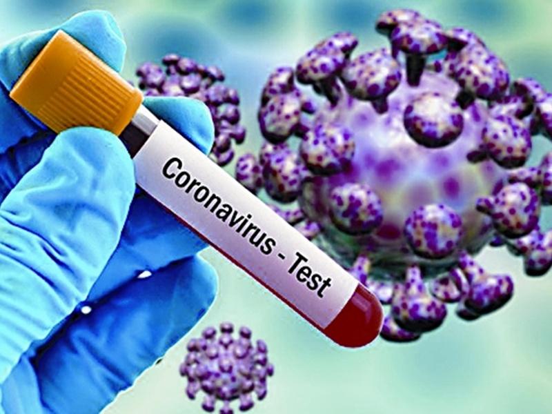 Coronavirus update in Chhattisgarh: राज्य में रिकवरी दर पहुंचा 89 फीसद, दो लाख से अधिक ने दी कोरोना को मात