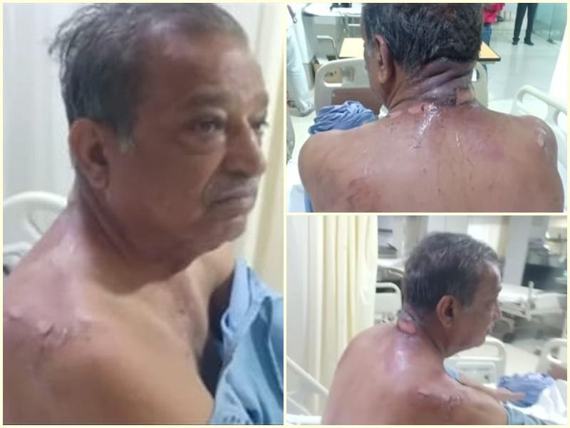 Suicide Attempt In Indore: बेटे से परेशान होकर पिता ने पेट्रोल डालकर की आत्मदाह की कोशिश, अस्पताल में भर्ती