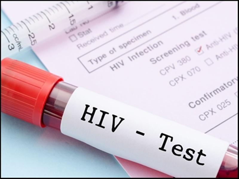 World AIDS Day 2020: खून में छिपा एचआईवी वायरस समय के पहले जांच की पकड़ से दूर